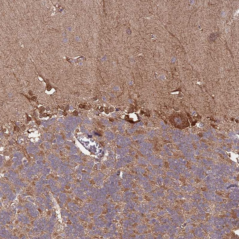 Immunohistochemistry (Formalin/PFA-fixed paraffin-embedded sections) - Anti-IL-17RD antibody (ab187923)