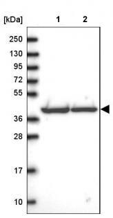 Western blot - Anti-SUCLG2 antibody (ab187996)