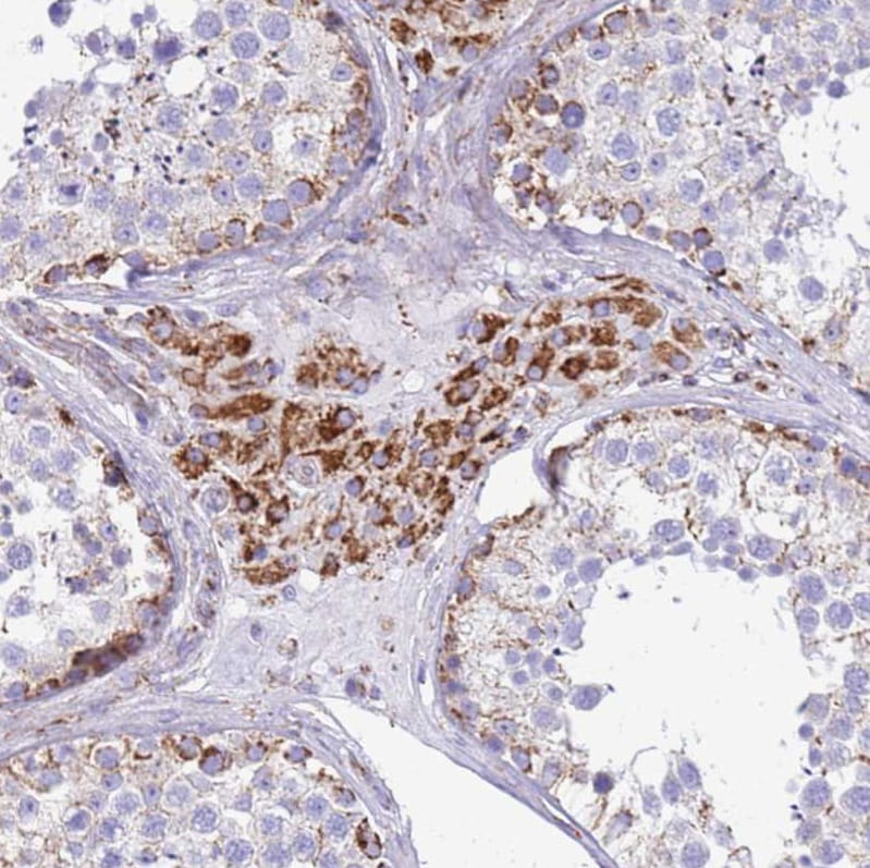 Immunohistochemistry (Formalin/PFA-fixed paraffin-embedded sections) - Anti-SUCLG2 antibody (ab187996)