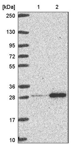 Western blot - Anti-RPL10A antibody (ab187998)