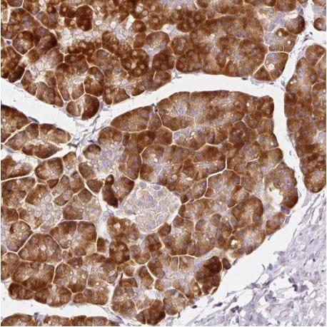 Immunohistochemistry (Formalin/PFA-fixed paraffin-embedded sections) - Anti-RPL10A antibody (ab187998)