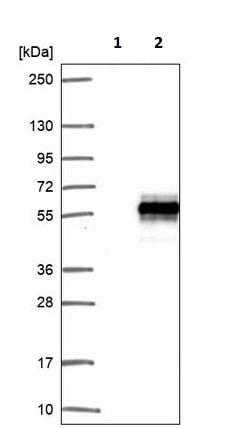 Western blot - Anti-Retinoic Acid Receptor gamma 2 antibody - N-terminal (ab188000)