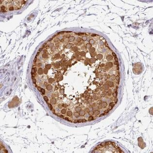 Immunohistochemistry (Formalin/PFA-fixed paraffin-embedded sections) - Anti-1-AGP acyltransferase 4 antibody (ab188002)