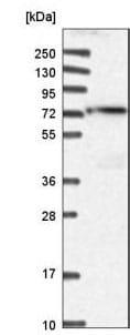 Western blot - Anti-ACSS3 antibody (ab188009)
