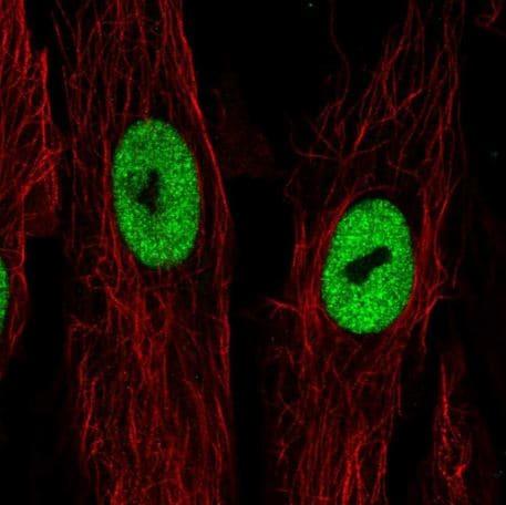 Immunocytochemistry/ Immunofluorescence - Anti-LRRN4CL antibody (ab188018)