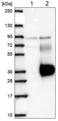 Western blot - Anti-LRRN4CL antibody (ab188018)