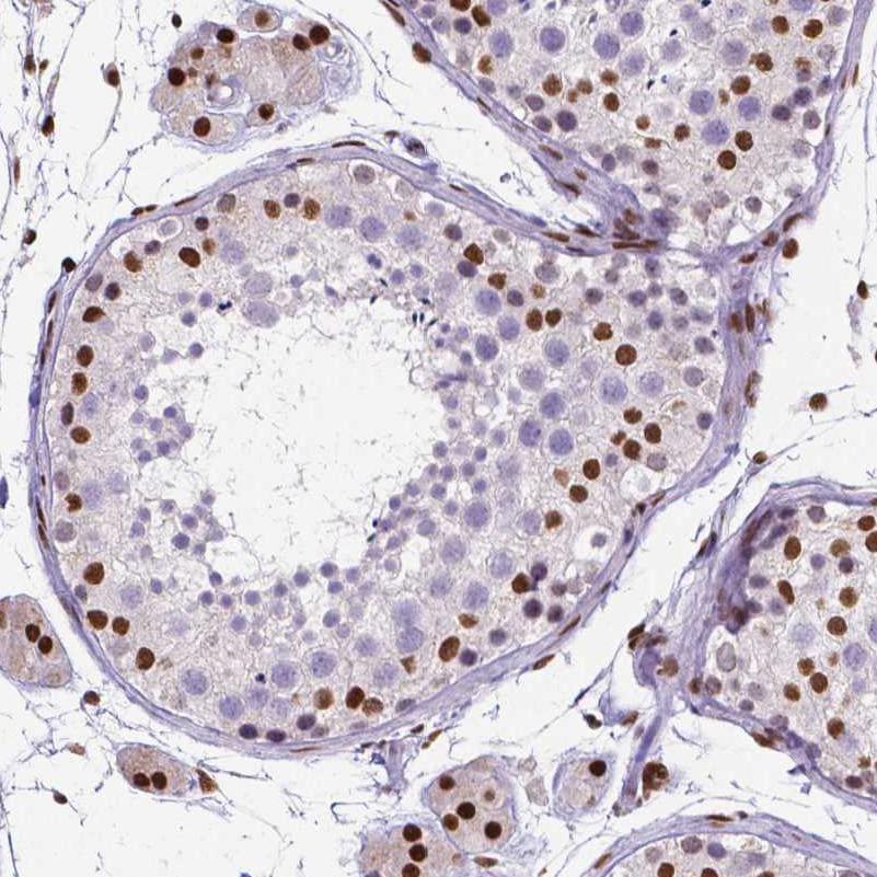 Immunohistochemistry (Formalin/PFA-fixed paraffin-embedded sections) - Anti-ATRX antibody [CL0537] (ab188027)