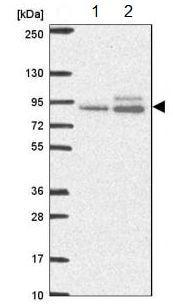 Western blot - Anti-ABR antibody (ab188071)