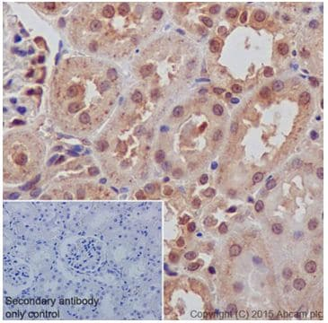 Immunohistochemistry (Formalin/PFA-fixed paraffin-embedded sections) - Anti-AKT1 + AKT2 antibody [EPR18405] (ab188099)