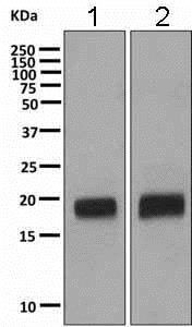 Western blot - Anti-VILIP1 antibody [EPR9833] - BSA and Azide free (ab188106)