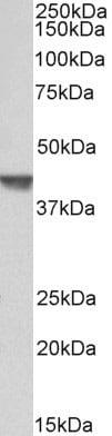 Western blot - Anti-Actin Regulatory Protein CAPG/MCP antibody (ab188112)