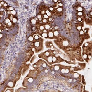 Immunohistochemistry (Formalin/PFA-fixed paraffin-embedded sections) - Anti-YIF1B antibody (ab188127)