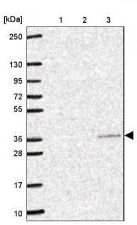 Western blot - Anti-YIF1B antibody (ab188127)