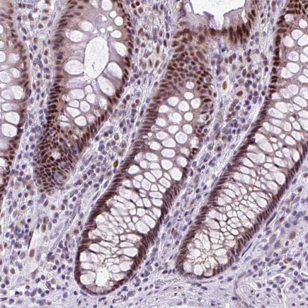Immunohistochemistry - Anti-CLK2 antibody (ab188141)