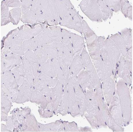 Immunohistochemistry (Formalin/PFA-fixed paraffin-embedded sections) - Anti-CLK2 antibody (ab188141)