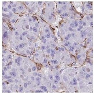 Immunohistochemistry (Formalin/PFA-fixed paraffin-embedded sections) - Anti-IGSF23 antibody (ab188146)