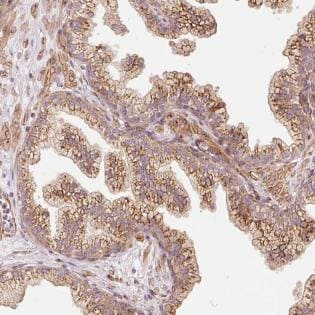 Immunohistochemistry (Formalin/PFA-fixed paraffin-embedded sections) - Anti-PPP1R14B/PNG antibody (ab188150)
