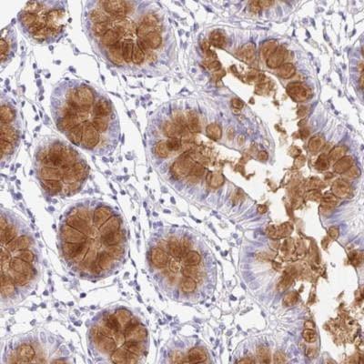 Immunohistochemistry (Formalin/PFA-fixed paraffin-embedded sections) - Anti-SERPINE3 antibody (ab188155)