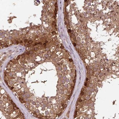 Immunohistochemistry (Formalin/PFA-fixed paraffin-embedded sections) - Anti-MMS19 antibody (ab188156)