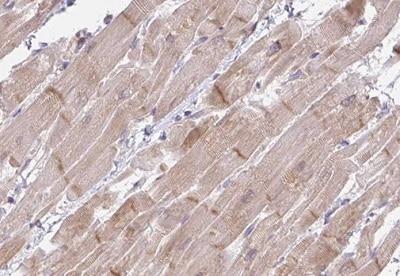 Immunohistochemistry (Formalin/PFA-fixed paraffin-embedded sections) - Anti-FILIP1/FILIP antibody (ab188157)