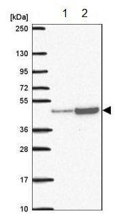 Western blot - Anti-RRS1 antibody (ab188161)