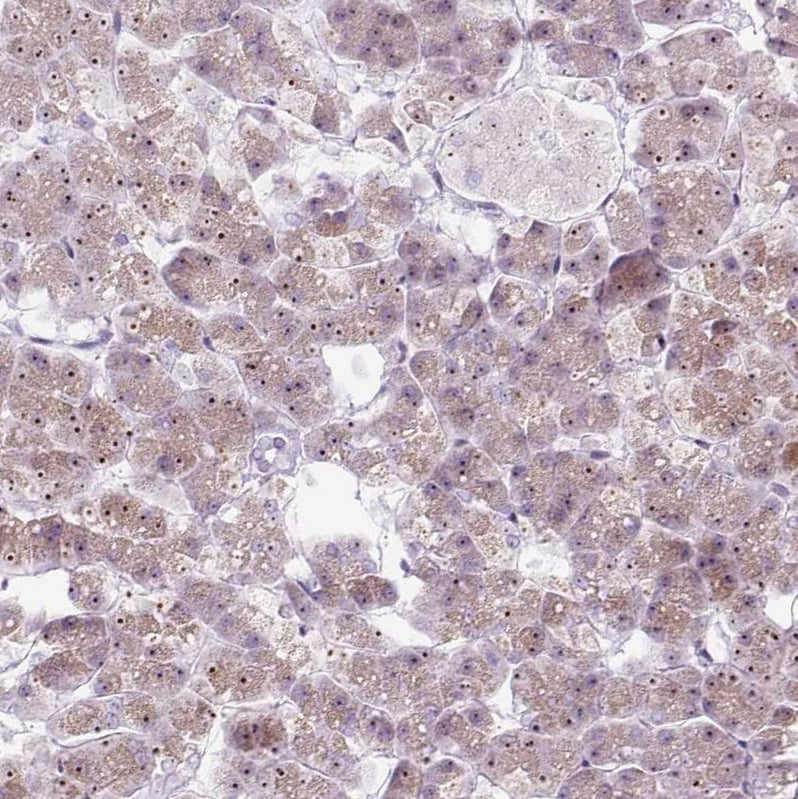 Immunohistochemistry (Formalin/PFA-fixed paraffin-embedded sections) - Anti-RRS1 antibody (ab188161)