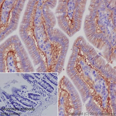 Immunohistochemistry (Formalin/PFA-fixed paraffin-embedded sections) - Anti-CD147 antibody [EPR18008-8] (ab188190)