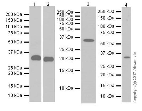 Western blot - Anti-IGFBP2 antibody [EPR18012-257] (ab188200)