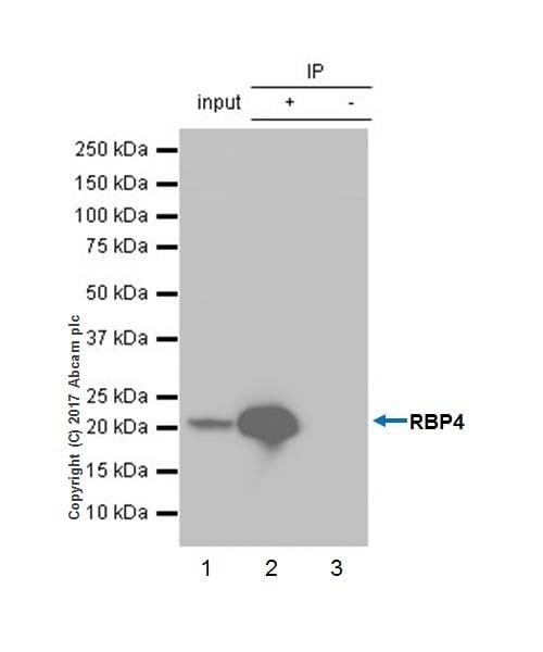 Immunoprecipitation - Anti-RBP4 antibody [EPR18020-115] (ab188230)