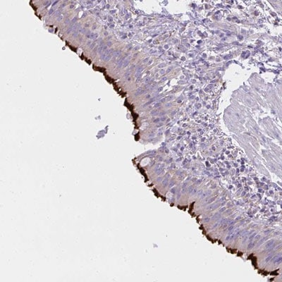 Immunohistochemistry (Formalin/PFA-fixed paraffin-embedded sections) - Anti-CCDC142 antibody (ab188309)