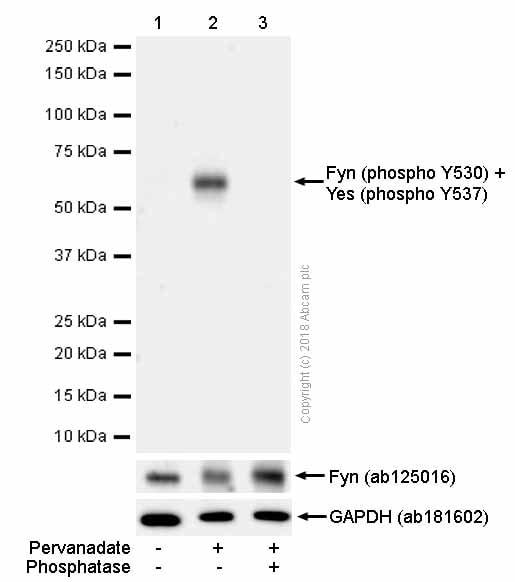 Western blot - Anti-Fyn (phospho Y530) + Yes (phospho Y537) antibody [EPR13512] (ab188319)