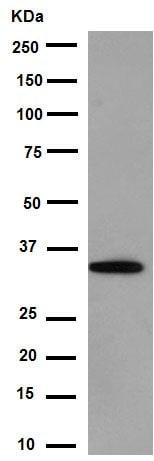 Western blot - Anti-EMAP II/AIMP1 antibody [EPR14168(B)] (ab188320)