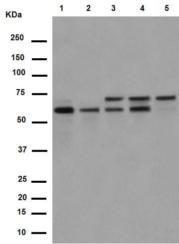 Western blot - Anti-PPP2R5D antibody [EPR15617] (ab188323)