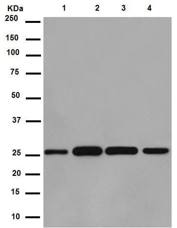 Western blot - Anti-C14orf166 antibody [EPR15799] (ab188326)