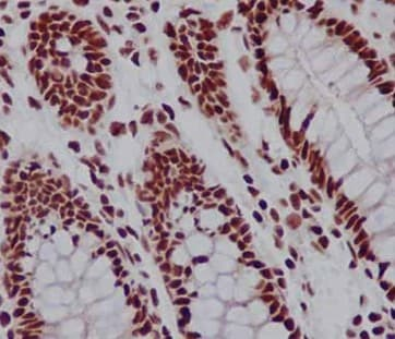 Immunohistochemistry (Formalin/PFA-fixed paraffin-embedded sections) - Anti-TAF3 antibody [EPR15598] (ab188332)