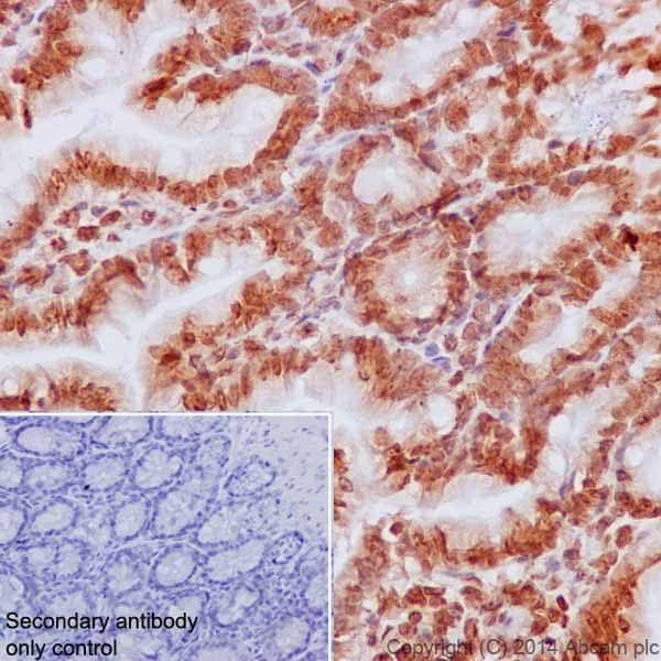 Immunohistochemistry (Formalin/PFA-fixed paraffin-embedded sections) - Anti-Histone H2B (mono methyl K5) antibody [EPR18092] (ab188340)