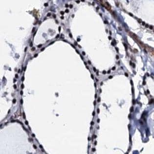 Immunohistochemistry (Formalin/PFA-fixed paraffin-embedded sections) - Anti-CWC15 antibody (ab188345)