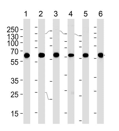 Western blot - Anti-BBS4 antibody [1292CT845.130.218] (ab188364)