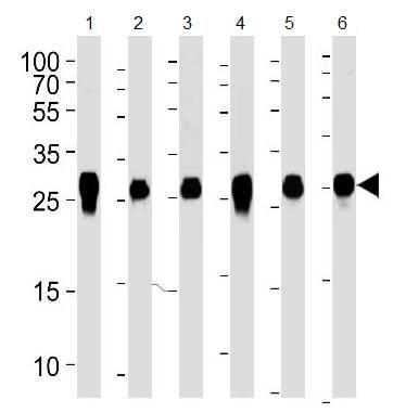 Western blot - Anti-14-3-3 zeta antibody [1314CT423.108.153.173.140] (ab188368)