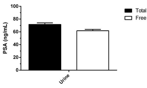 Observed Free PSA levels in pooled donor, mixed gender normal Human urine.