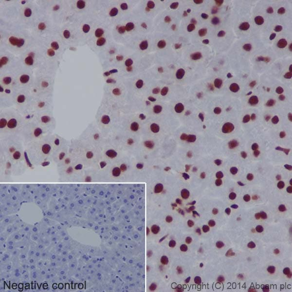 Immunohistochemistry (Formalin/PFA-fixed paraffin-embedded sections) - Anti-CTCF antibody [EPR18253] - ChIP Grade (ab188408)