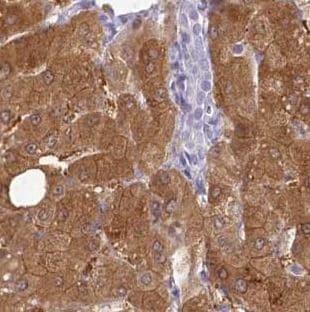 Immunohistochemistry (Formalin/PFA-fixed paraffin-embedded sections) - Anti-HPD antibody - N-terminal (ab188436)