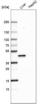 Western blot - Anti-HPD antibody - N-terminal (ab188436)