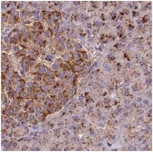Immunohistochemistry (Formalin/PFA-fixed paraffin-embedded sections) - Anti-DOCK6 antibody (ab188445)