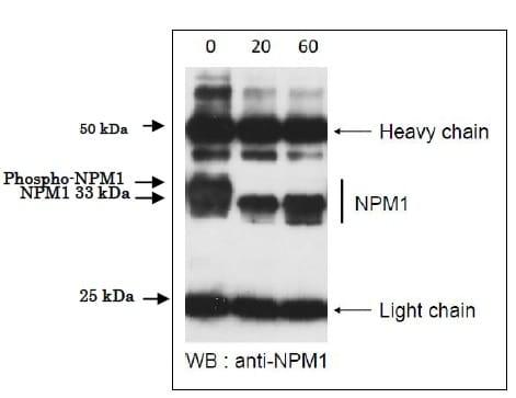 Immunoprecipitation - Recombinant Serine/threonine-protein phosphatase (ab188459)