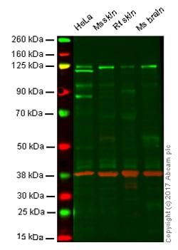 Western blot - Anti-Dnmt3a antibody [EPR18455] (ab188470)