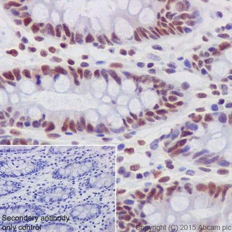Immunohistochemistry (Formalin/PFA-fixed paraffin-embedded sections) - Anti-GATAD2A antibody [EPR18252] (ab188472)