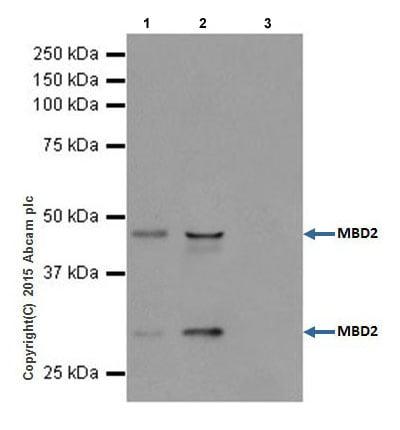 Immunoprecipitation - Anti-MBD2 antibody [EPR18361] (ab188474)