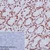 Immunohistochemistry (Formalin/PFA-fixed paraffin-embedded sections) - Anti-MBD2 antibody [EPR18361] (ab188474)