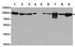 Western blot - Anti-ClC-5 antibody - C-terminal (ab188503)